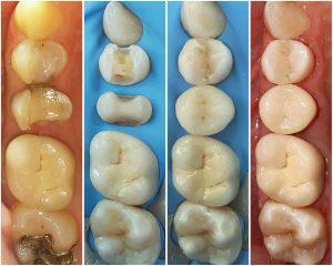 Damyanov dental Естетични възстановявания Естетични възстановявания