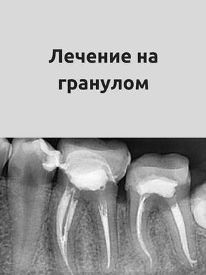 Damyanov dental Лечение на коренови канали коренови канали
