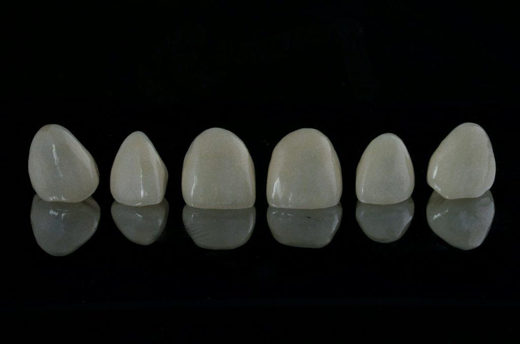 Damyanov dental Нова усмивка фасети