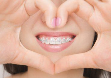 """Дентална клиника """"Дамянов"""" Ортодонтско лечение ортодонтско лечение"""